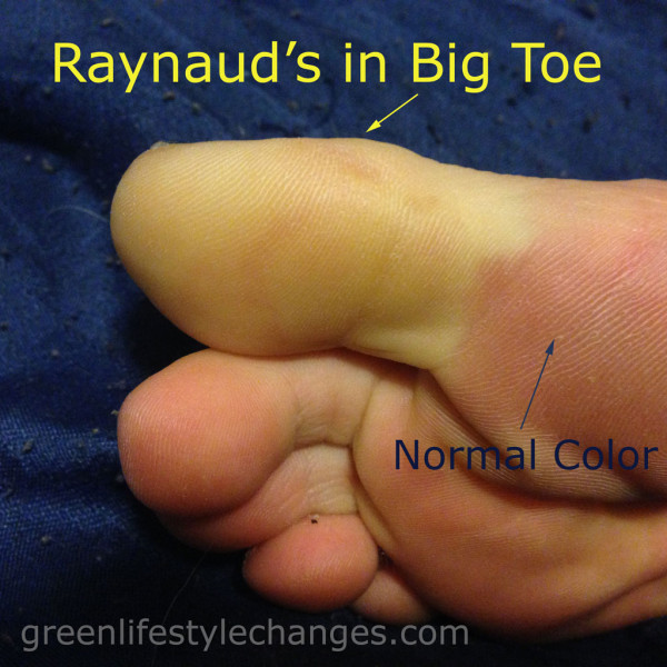 Raynauds in Big Toe